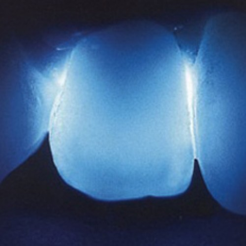 Korona cyrkonowa - przezierność światła