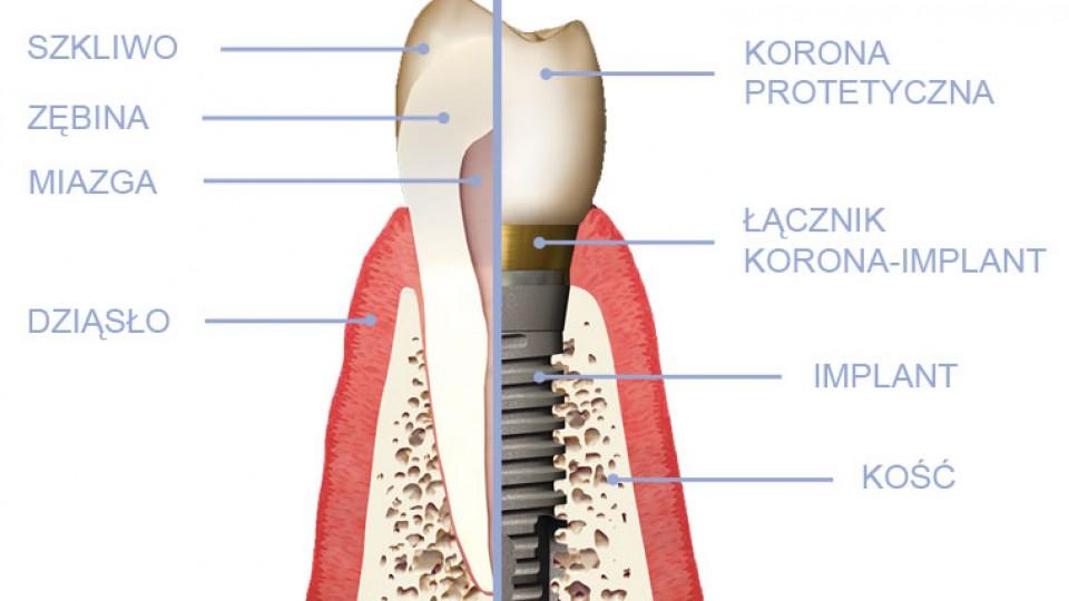 implant-zęba