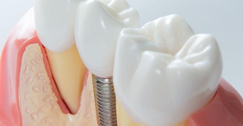 implanty bydgoszcz