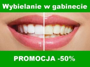 dentysta bydgoszcz, wybielanie w gabinecie